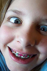 Braces now or brace yourself later shakadoo are your kids getting to the age where you need to start thinking about whether to brace them for the possibility of orthodontics solutioingenieria Images