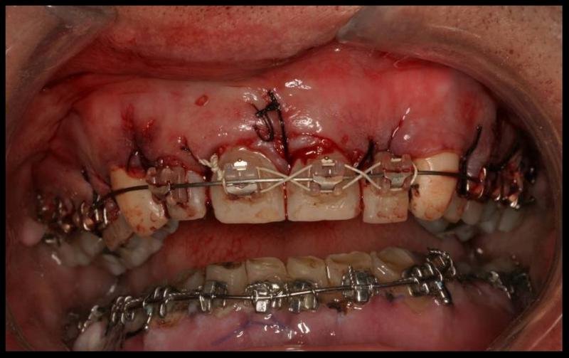Braces now or brace yourself later shakadoo particles upperandlowercompletejpg solutioingenieria Images