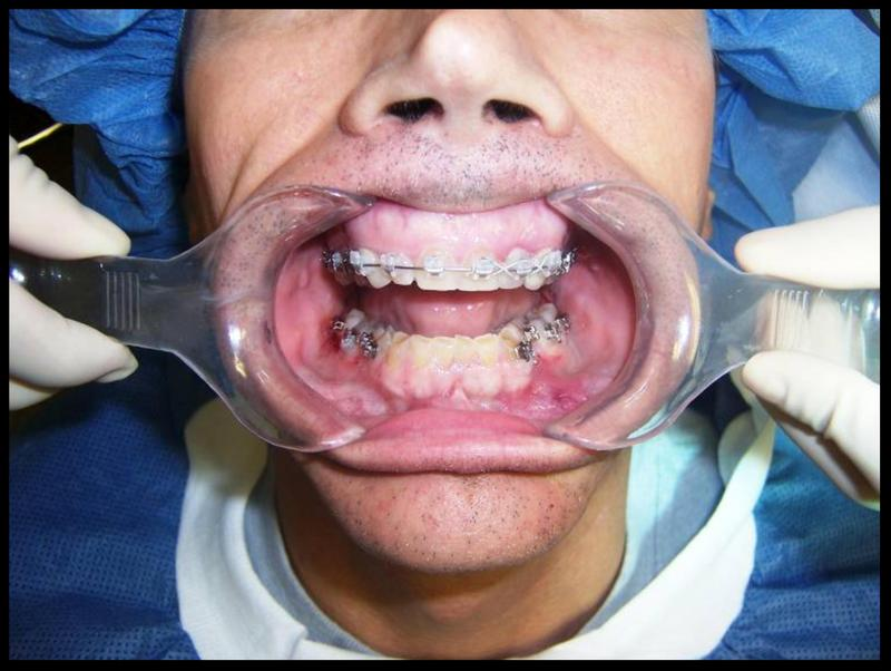 We'll start with the before surgery, after brackets photo.